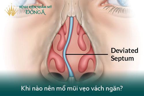 Vẹo vách ngăn mũi có cần phẫu thuật? Có nguy hiểm không? Hình 2