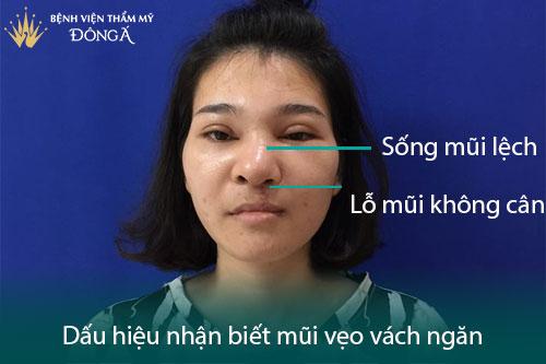 Vẹo vách ngăn mũi là gì? 6 Triệu chứng và Hình ảnh thực tế - Hình 2