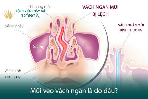 Vẹo vách ngăn mũi là gì? 6 Triệu chứng và Hình ảnh thực tế - Hình 3