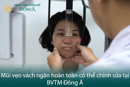 Vẹo vách ngăn mũi là gì? 6 Triệu chứng và Hình ảnh thực tế - Hình 4